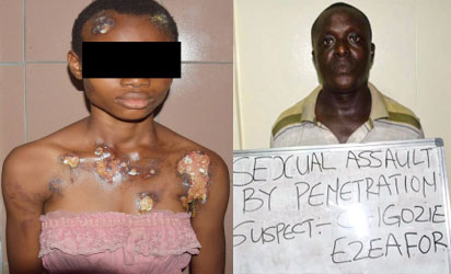 Maid victim, Blessing Joseph raped through the anus by her Oga, Chigozie Ezeafor