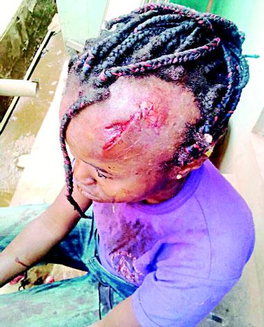 Herdsman hacks Ondo woman's head open, Police release him, say he's not herdsman